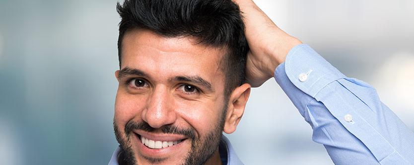 Att överväga före en hårtransplantation